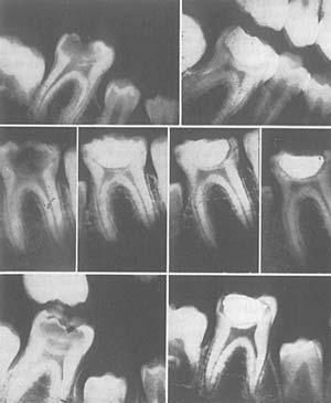 Питание и физическая дегенерация. О причинах вредного воздействия современной диеты на зубы и здоровье человека