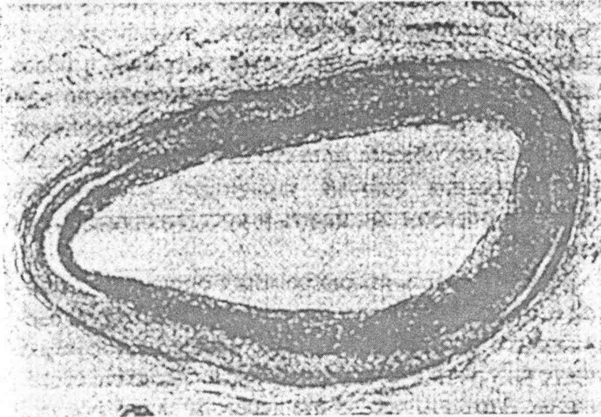 удивительное очищение желчного пузыря печени