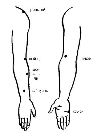 точечный массаж при болях седалищного нерва